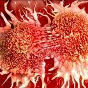 DESCOPERIRE MEDICALA: ALIMENTUL CARE UCIDE 85% DIN CELULELE CANCERULUI PULMONAR