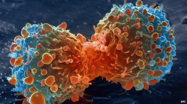 CUM POATE FI PREVENIT CANCERUL: ANUNTUL DE ULTIMA ORA AL EXPERTILOR