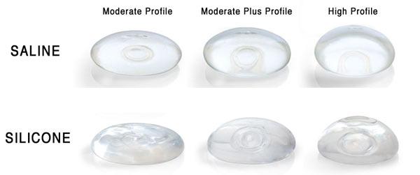 Implanturile mamare: Beneficii și dezavantaje ale celei mai întâlnite metode de îmbunătățire a imaginii